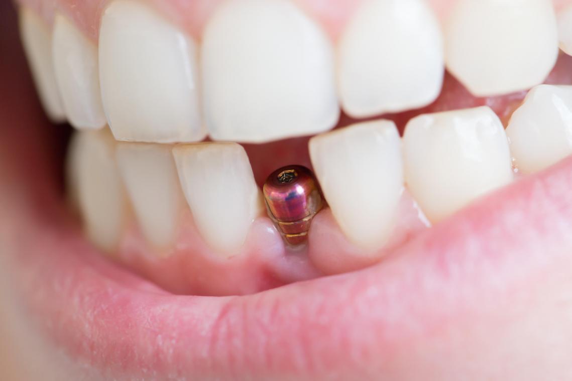 Implant dentaire Lyon : quelle est la procédure de cette chirurgie ?
