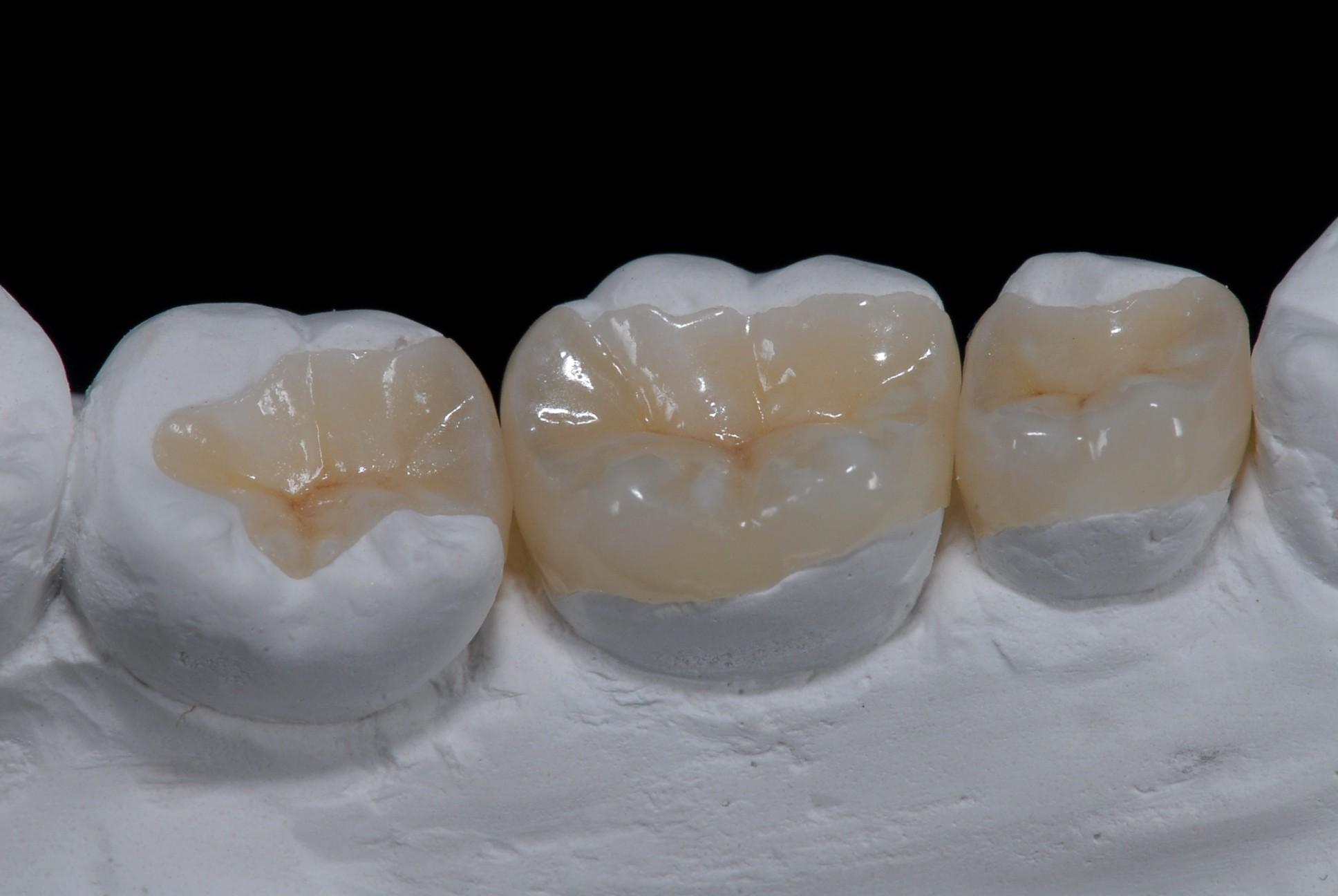 Chirurgie dentaire : que faire avant, pendant et après la chirurgie ?